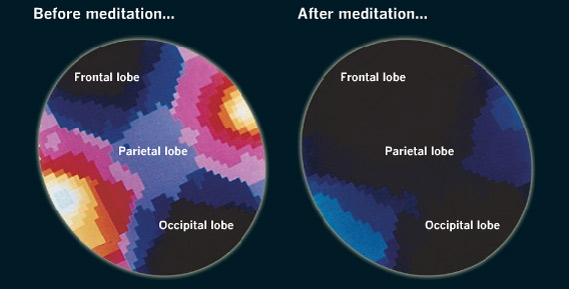 Méditation avant et après
